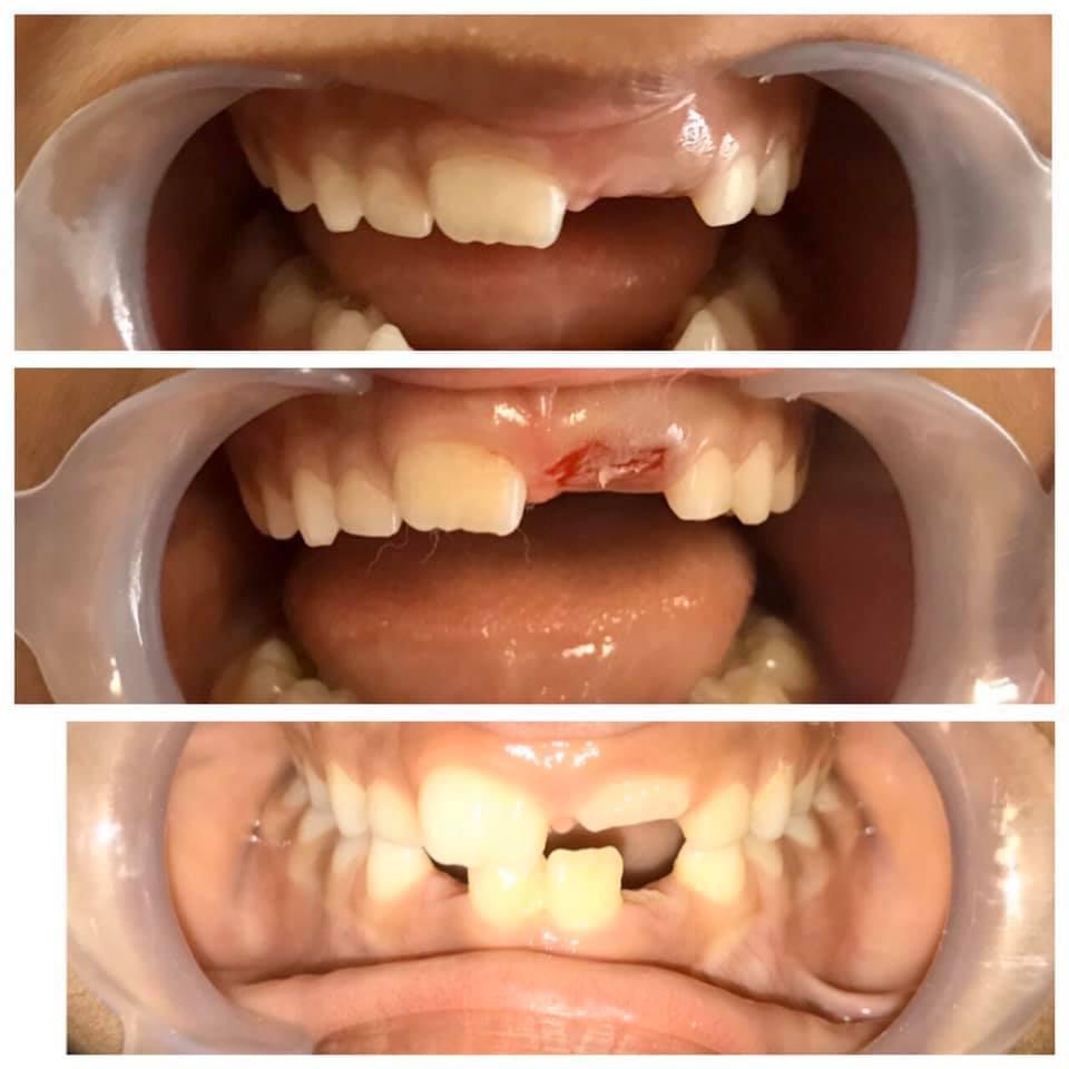 case-2-toothvilla