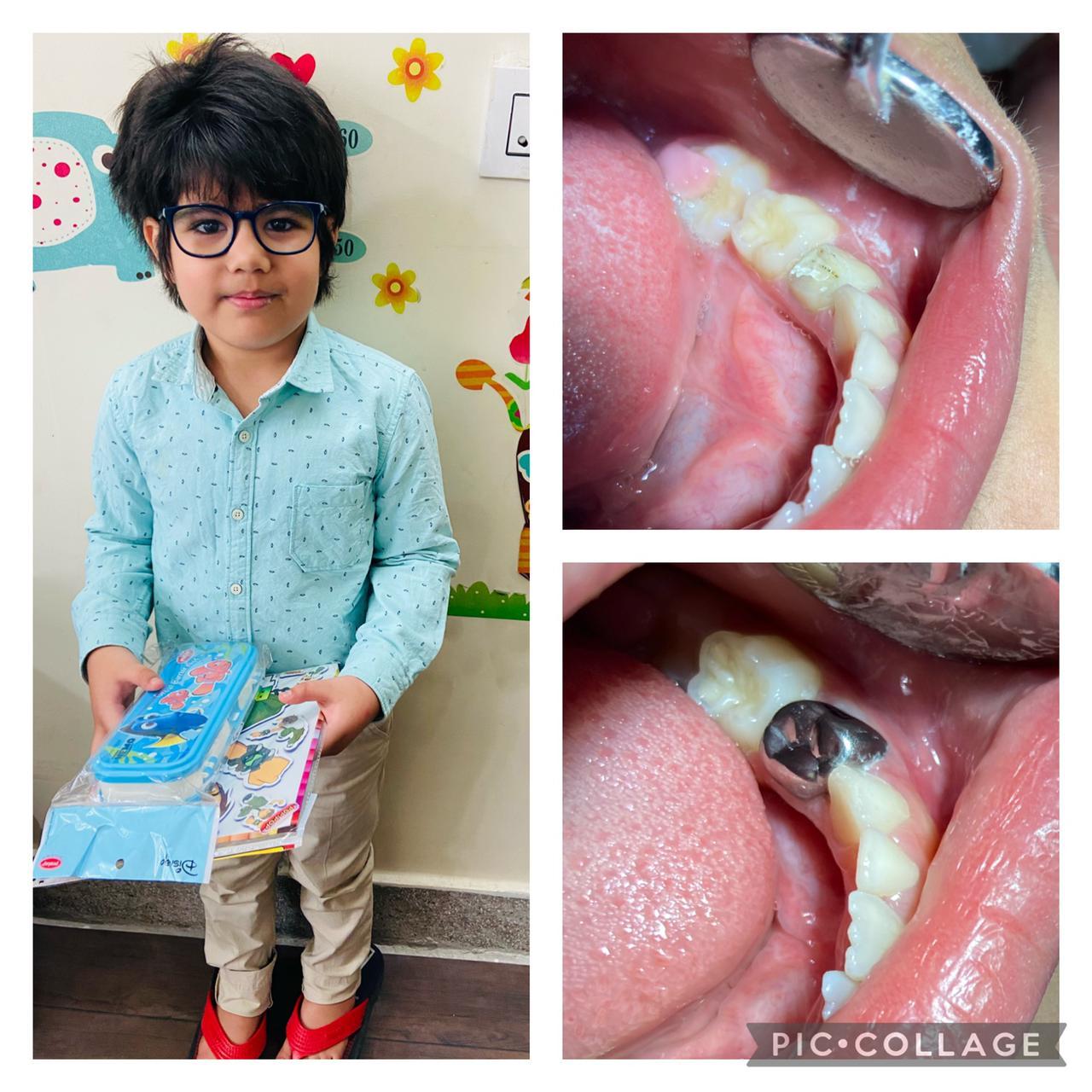 toothvilla-jammu-dental-clinic-dr-keert-chandail-1